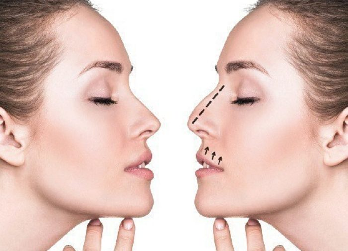 Common Nose Problems Rhinoplasty Surgery Can Correct