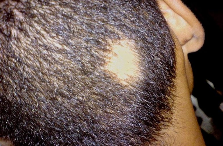 How Alopecia Areata affects different age groups?